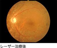 画像:レーザー治療後の眼底写真